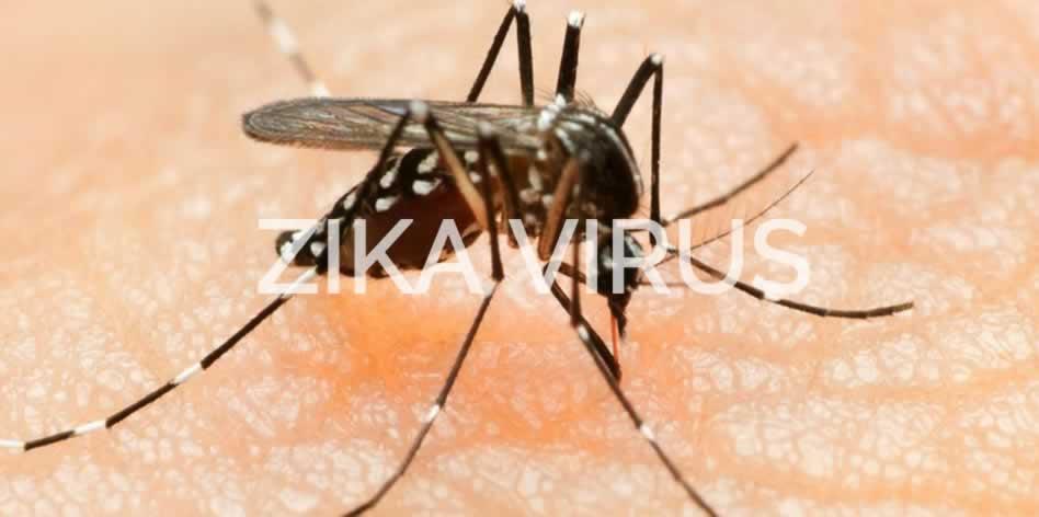 sus-zika-virus-sintomas